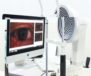 德国Oculus眼表分析系统