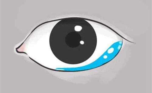 电脑白领族易惹上干眼症