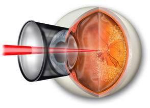 激光手术是治疗眼底疾病的重要手段